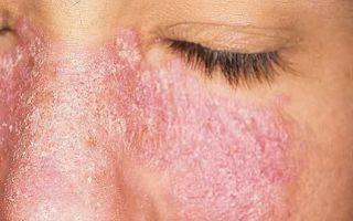 Себорейный дерматит можно вылечить или он неизлечим