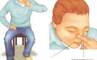 Почему идет кровь из носа при повышенном давлении?