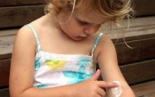 Эмоленты при атопическом дерматите у детей: список дешевых и эффективных средств