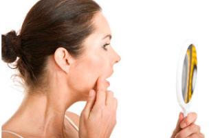 Контактный дерматит из за чего возникает