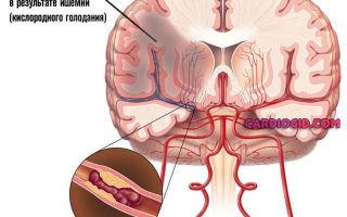 Признаки повышенного давления у человека: основные симптомы и методы лечения патологии