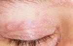 Аллергический дерматит на коже вокруг глаз: описание заболевания и основное лечение