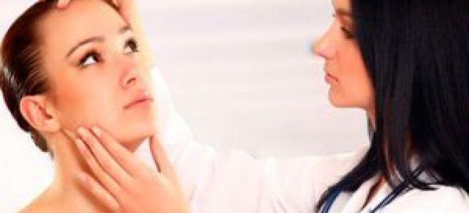 Как снять зуд при периоральном дерматите: первая помощь и эффективные средства