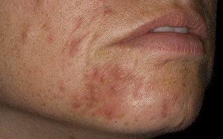 Уход за кожей при периоральном дерматите