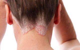 Себорейный дерматит: от чего он возникает