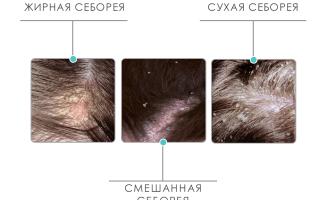 Как быстро вылечить себорейный дерматит на голове в домашних условиях: простые рецепты