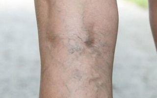 Дерматит нижних конечностей при недостаточности кровообращения: описание патологии и методы терапии