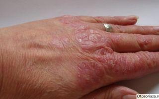Дерматит и псориаз ладоней и подошв: основные способы лечения заболеваний кожи