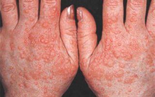 Атопический дерматит в холодное время года: причины состояния и методы борьбы с болезнью