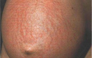 Чем снять зуд при атопическом дерматите у беременных