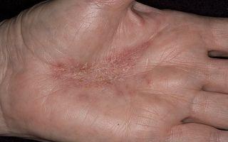 Как вылечить аллергический дерматит раз и навсегда: полезные советы и методы лечения