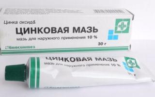 Помогает ли Адвантан при себорейном дерматите: эффективность препарата и подробная инструкция