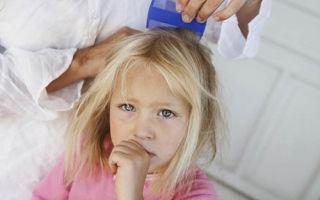 Себорейный дерматит волосистой части головы у ребенка 5 лет: что это и как лечить болезнь?