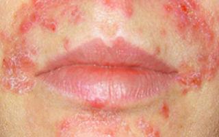 Что за болезнь артифециональный дерматит Дермагалы и как ее лечить?