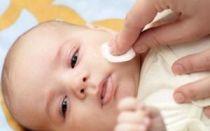 Атопический дерматит вокруг рта у ребенка: лечение и особенности сыпи в детском возрасте