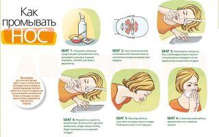 Как избавиться от соплей в домашних условиях быстро за 2 часа: простые рецепты