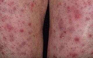 Венозный дерматит на ногах: методы лечения народными средствами быстро