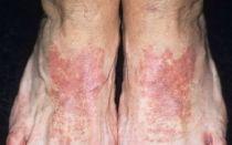 Контактный дерматит: симптомы и лечение у детей на ноге