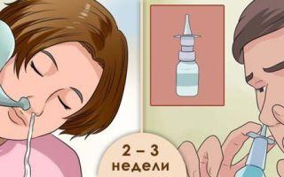 Как вылечиться от гайморита в домашних условиях и укрепить иммунитет?
