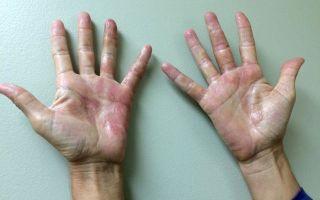 Что можно есть при аллергическом дерматите детям?