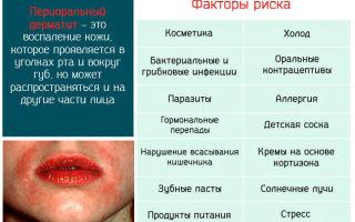 Можно ли вылечить периоральный дерматит навсегда?