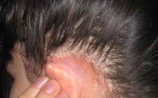 Атопический дерматит и контактный дерматит в чем разница