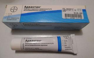 Адвантан мазь или крем при атопическом дерматите: описания препаратов и различия