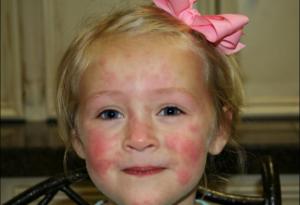 Аллергический дерматит у 4 месячного ребенка