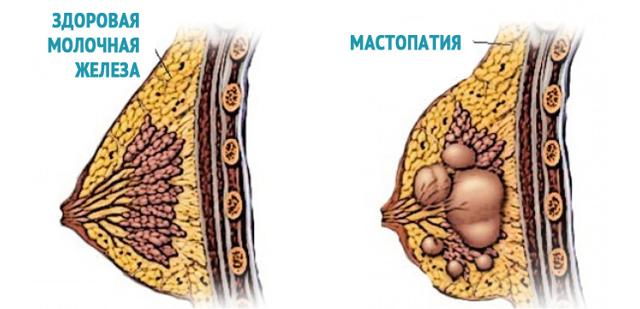 Что такое диффузная фиброзно-кистозная мастопатия молочных желез