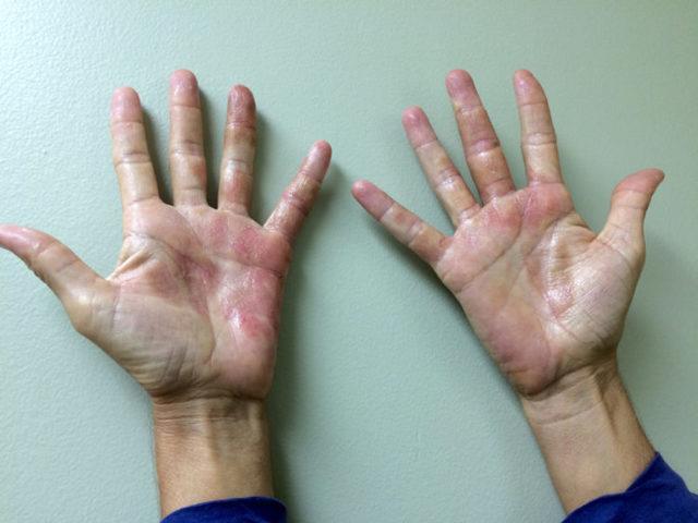 Из за чего появляется дерматит на руках и ногах