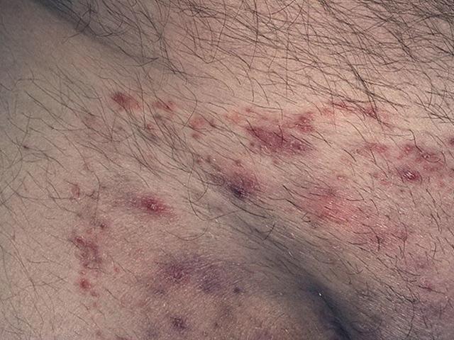 Атопический дерматит в паху у женщин