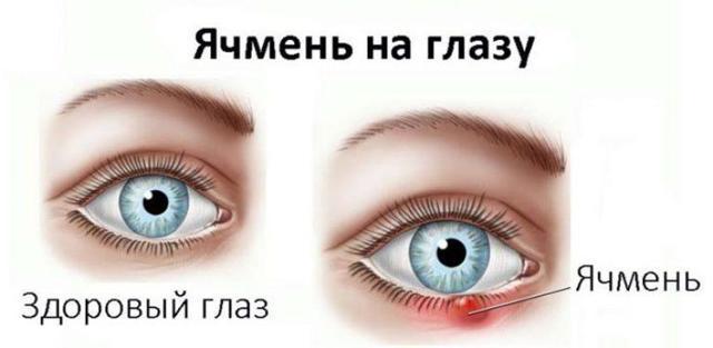 Когда давит на глаза это повышенное или пониженное давление