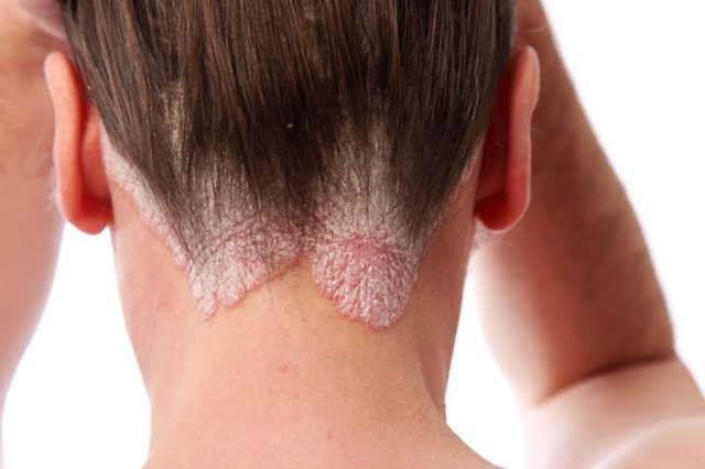 Заболевание кожи у детей дерматит нейродермит