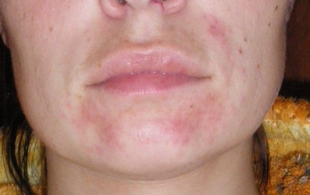 Как выглядит себорейный дерматит на голове?