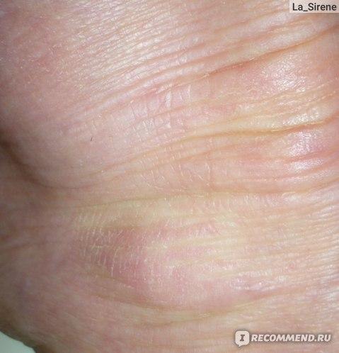 Как принимать асд 2 при дерматите?
