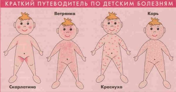Инфекционный дерматит у детей причины и лечение