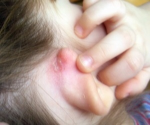 У ребенка дерматит за ушами у