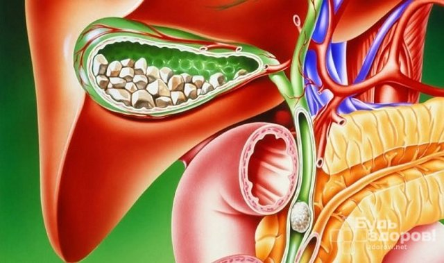 Симптомы хронического холецистита