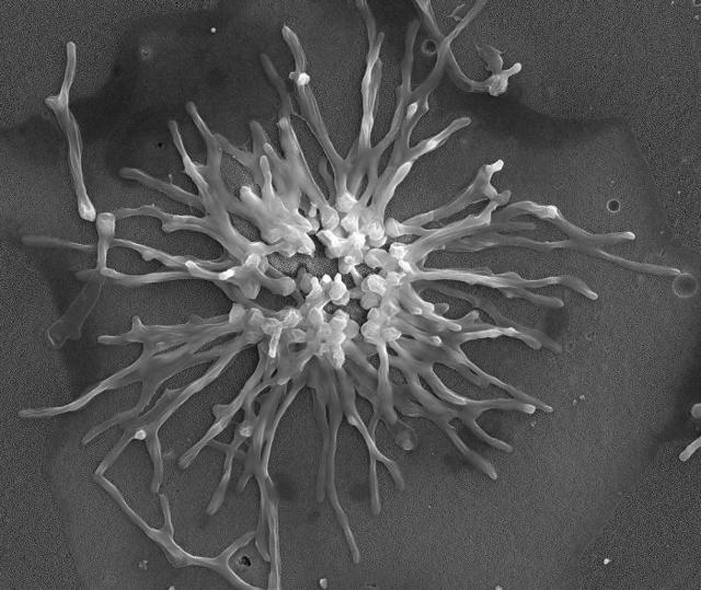 Как понизить рост дрожжеподобных грибов в горле и повысить иммунитет?