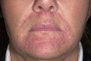 Пероральный дерматит причины и методы его лечения