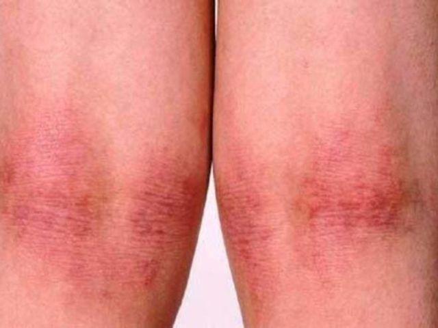 У ребенка дерматит на ножках у