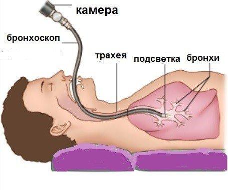 Симптомы воспаление легких без кашля