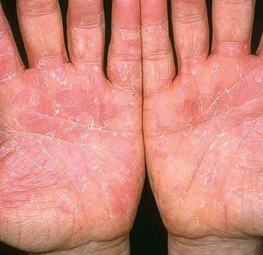 Эксфолиативный дерматит у взрослых симптомы и лечение