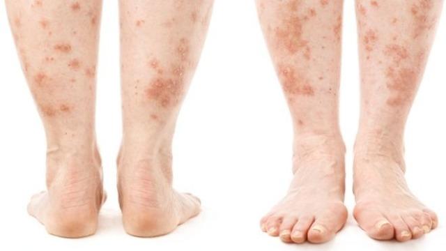 Как избавиться от дерматита на ногах?