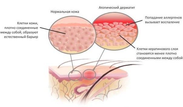 Судокрем при атопическом дерматите у детей