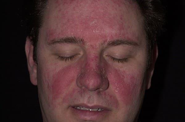 2 средства для лечения дерматитов бородавок себореи микозов
