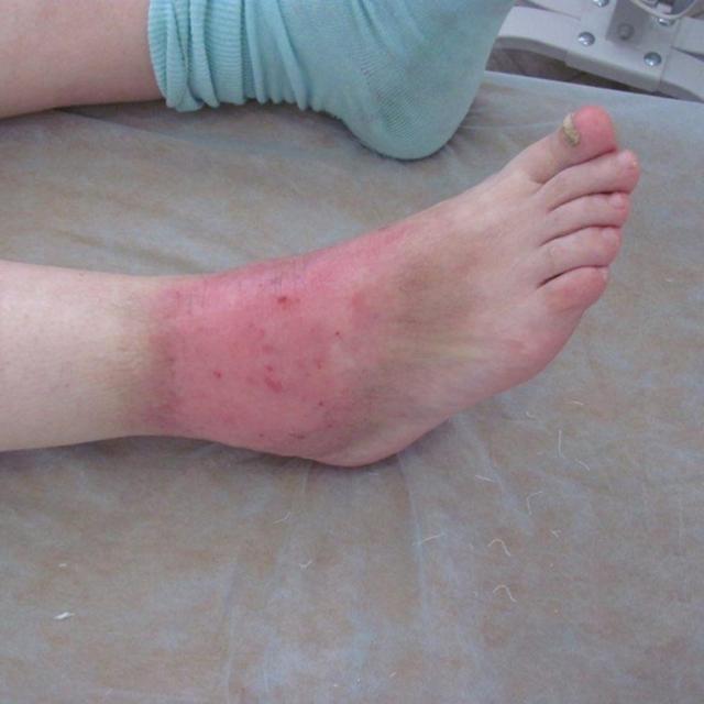 Венозный дерматит на ногах лечение народными средствами быстро