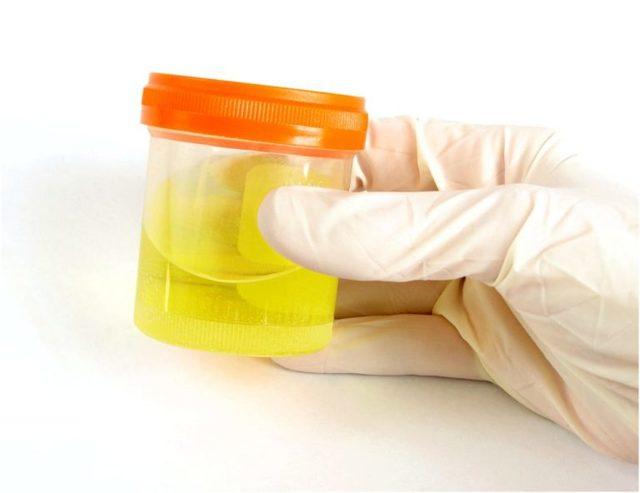 Белок в моче и повышенное давление при беременности диагноз