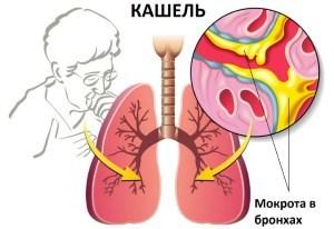 Как беременной вылечить кашель сухой?
