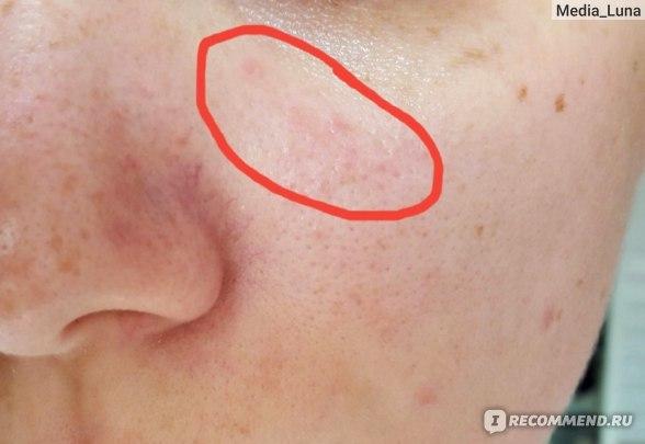 Ля рош позе от себорейного дерматита